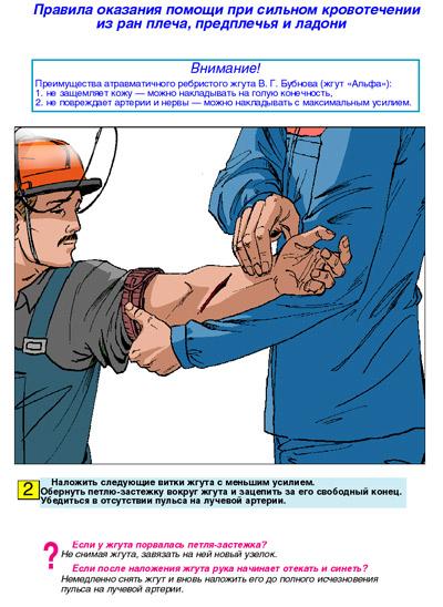 плакаты по обучению навыкам оказания первой помощи